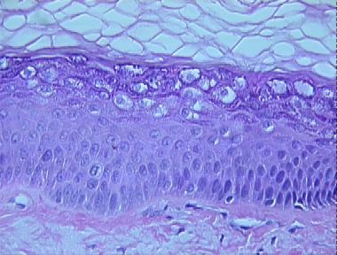 Verruca Plana Histopathology Loma Linda Dermatopathology