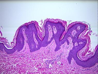 Reticulated papillomatosis histology. Histology of confluent and reticulated papillomatosis