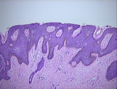 Pathology Outlines - Epidermal nevus  Pathology Outli...