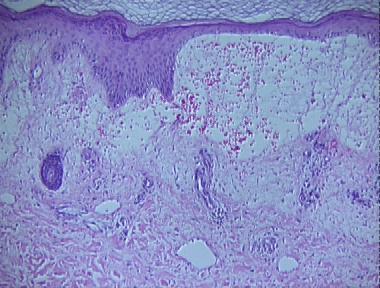 Cellulitis Histopathology Loma Linda Dermatopathology