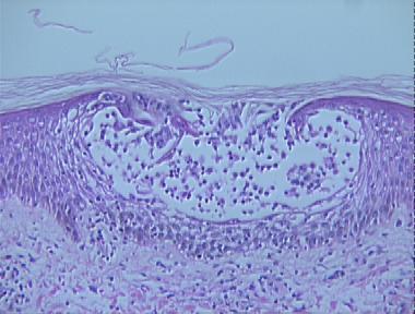 acute allergic contact dermatitis histopathology - Loma ...