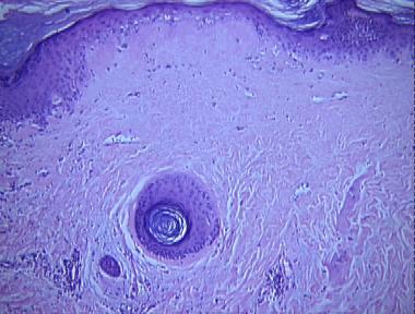 Degos Disease Malignant Atrophic Papulosis
